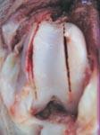 Краевая пластика суставного блока бедренной кости